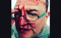 Apareció el video de la tremenda golpiza homofóbica que recibió Leo García